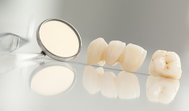 dental crown and bridge on table