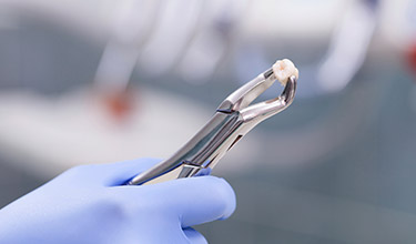 hand holding extracted tooth with a tool