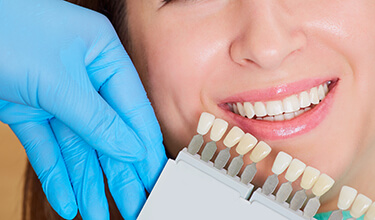 dental hygienist comparing white teeth to stained teeth model