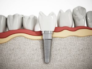 Treat your tooth loss with dental implants in Carrollton.