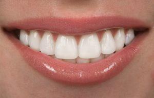 Close up of teeth